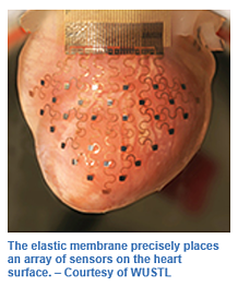 heart-implant-kapstone-medical-2