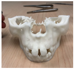 3d-printed-body-parts